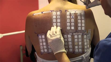 pach test skin allergy testing using patch tests