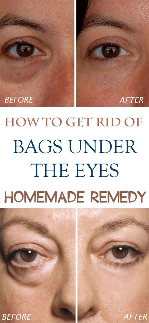 Get Rid Of Eye Circles Right In The Comfort Of Your Own Home by Get Rid Of Bags The