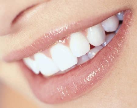 11 best porcelain veneers images porcelain veneers fort worth dental veneers brit