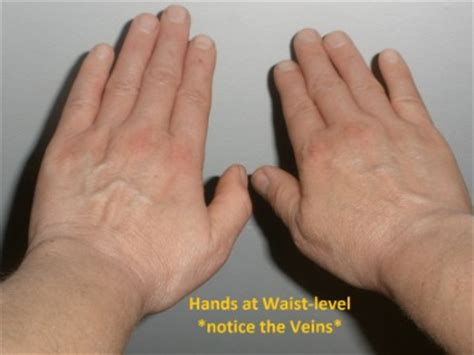 how to tell if your is dehydrated foot veins popping out www pixshark images galleries with a bite