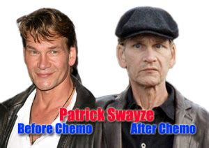 Should I Detox After Chemo by Before And After Chemo Pictures Of Swayze At Ask