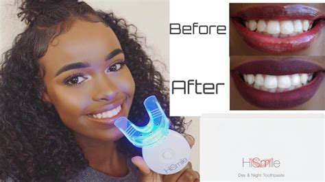do teeth whitening lights work hi smile review does it work youtube