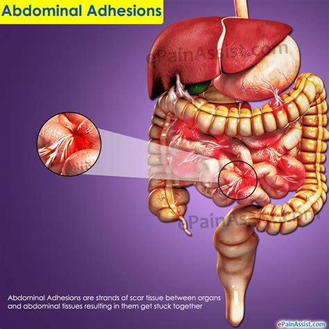 What Causes Blood In Stool And Lower Back by Blood In Stool And Lower Abdominal 12 Possible
