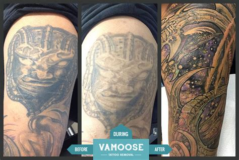 sleeve tattoo removal before and after half sleeve removal chicago il vamoose