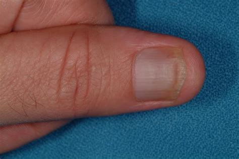 infected fingernail bed infected fingernail bed 28 images nail infection of