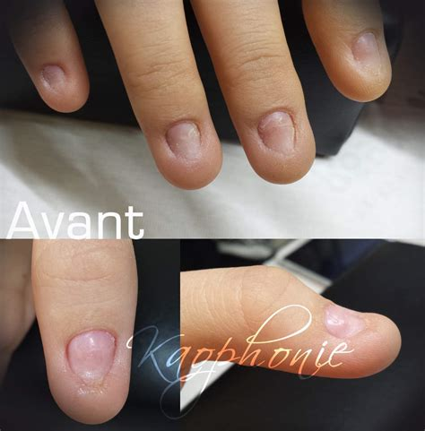modele ongle pointu reconstruction d ongles formation