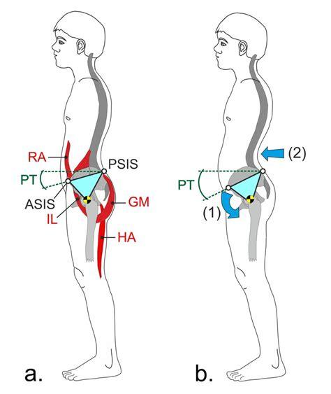 pivot model  anterior pelvic tilt ra rectus abdominis il  scientific diagram