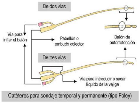 ubicacion imagenes latex colocacion de sonda vesical urinario para pacientes