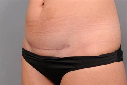 v back after c section photo gallery c section scar removal case 171