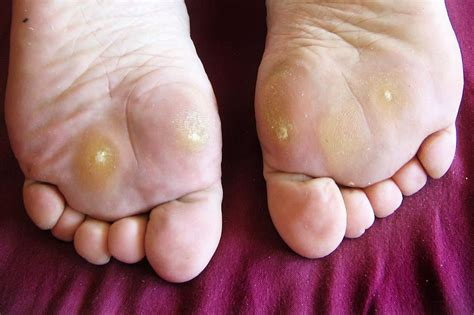 Planters Wart On Toe by How To Identify And Treat Plantar Warts