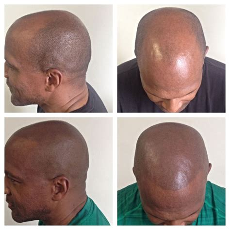 when to get a scalp tattoo or smp scalp micropigmentation