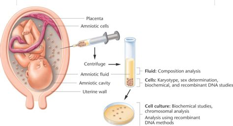amniocentesis test amniocentesis health power