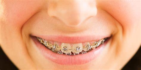 dental insurance pa dental insurance for braces dentalplans