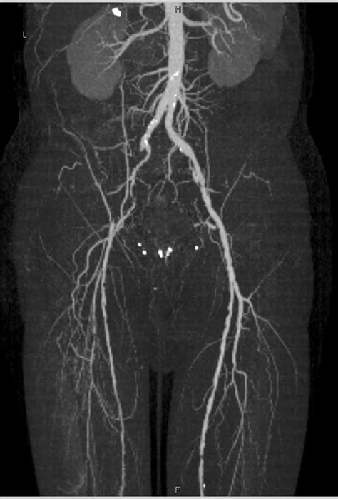 CTA Runoff with Occluded Right Superficial Femoral Artery