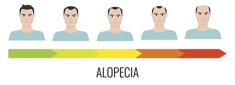 male pattern baldness name different types of male baldness causes of male pattern