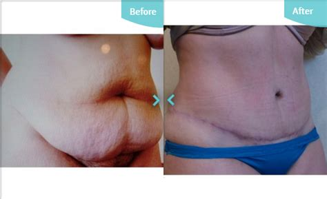 Tummy Tuck To Hit Uk by Tighten Sagging Skin Non Surgical Treatment Options