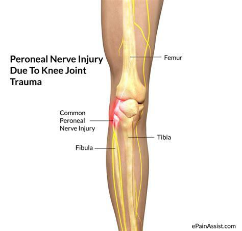 nerve pain causes nerve pain thighs knee anatomy pain symptoms human anatomy diagram