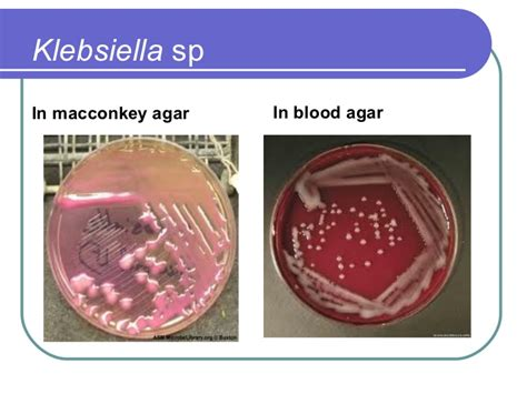 Klebsiella In Stool Culture by Enterobacteriaceae Brucella