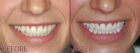 brightwhite smile teeth whitening light a cross dds jackson tn dentist invisalign