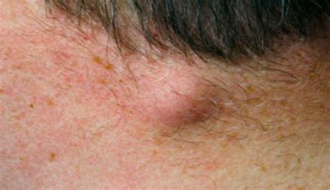 has soft lump on side lump on back of neck hairline skin right side left near spine hurts soft