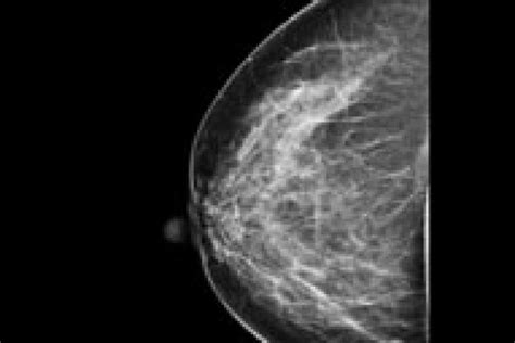 mammogram images mammography river radiology