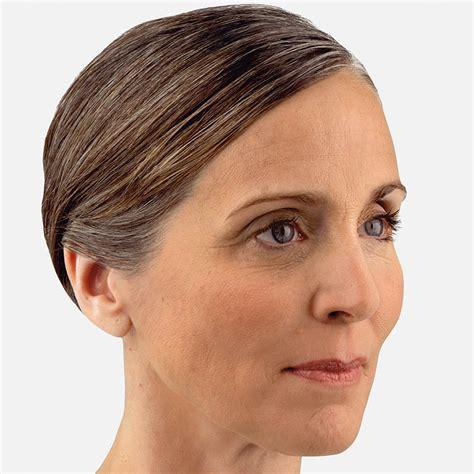 juvederm model non surgical cheek fillers juv 201 derm 174