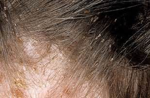 lice color awesome what do lice eggs look like on hair the