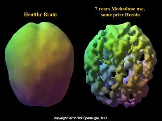 Rapid Methadone Detox Florida by Methadone Detox Methadone Addiction Treatment