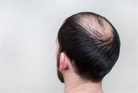 can u glue hair on a bald spot top 5 hair loss remedies recommended by ayurveda hair