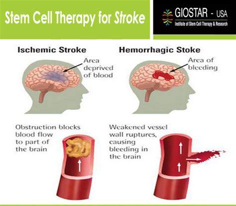 Herbal Carefor Stroke stroke treatment in india stem cell therapy for stroke