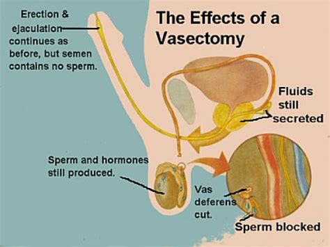 vasectomy procedure publish with glogster