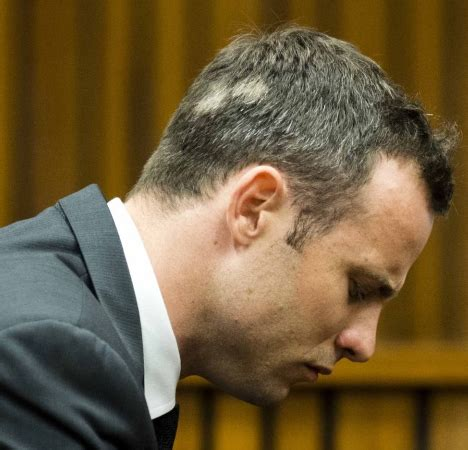 Male Pattern Hair Loss Or Stress | oscar pistorius and stress related hair loss