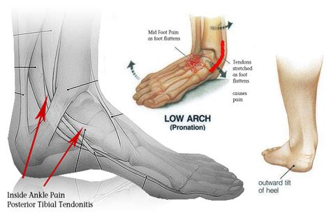 align side effects rash ankle causes symptoms treatment remedies