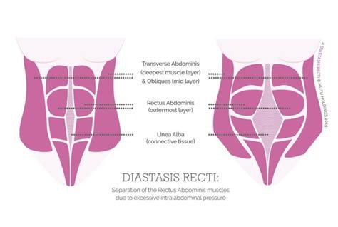 gap isnt  problem closing  diastasis recti
