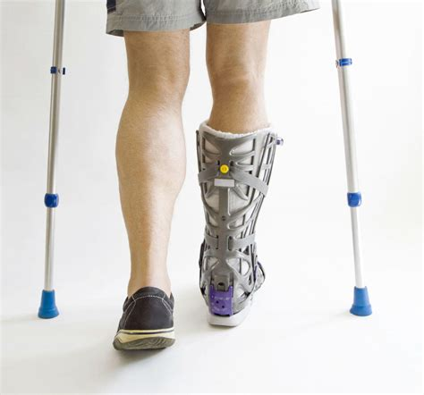 leg injuries leg injuries from car accidents