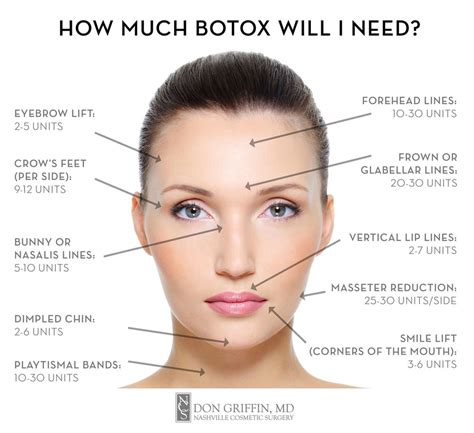 How Much Should I Make After Mba by Image Result For Botox Injection Map Botox