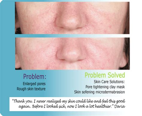 how to repair how to take care of granite countertops how to repair large facial pores