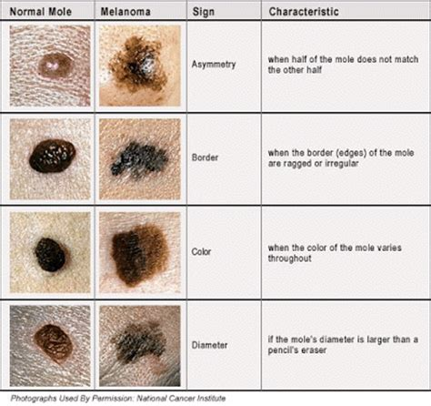 doctors gates melanoma skin cancer pic and self assessment