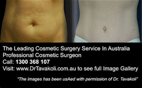 tummy tuck exercises post pregnancy  leading cosmetic surgery service  australia