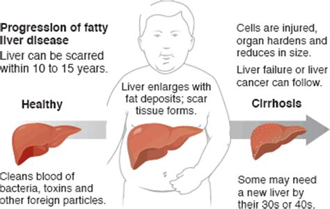 Your Liver Is Already Detoxed by Liver Info Just Another Site