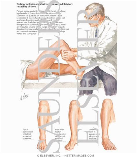 Anterior Drawer Test Knee by Tests For Anterior And Posterior Drawer And Rotatory