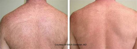 lumenis one lightsheer diode laser spa treatments providence photos