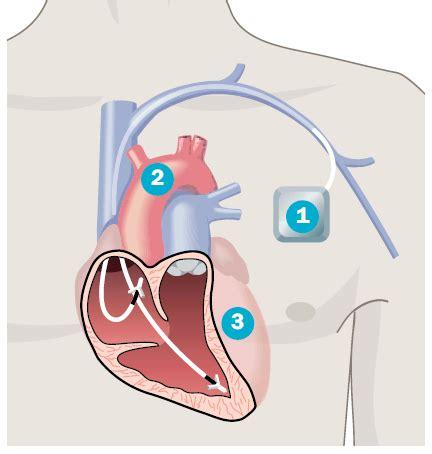 Wann Ist Ein Herzschrittmacher Notwendig Und Wie Lebt