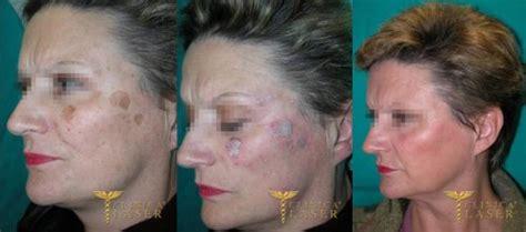 radiofrequenza viso quante sedute rimozione macchie clinica hitech specializzata nella