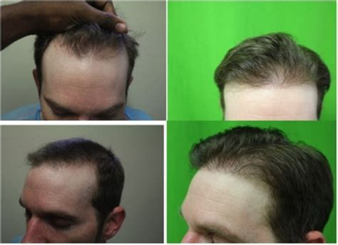 best hairtransplant in the world seeking the best fue hair transplant surgeon in the world