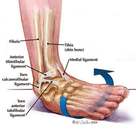 sprained ankle ankle sprain how bad is it and what should i do osteopath bath