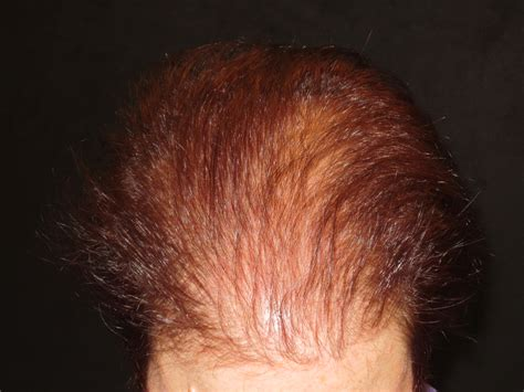 best hair growth treatment 2013 hair loss treatments by trichologist carolyn evans frost i