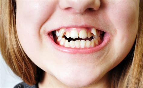 canine teeth image gallery k9 teeth