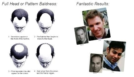 best hair growth treatment 2013 hair loss treatment 2013 best treatment for men in 2013