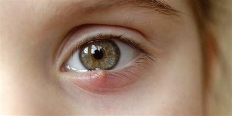 orzaiolo interno rimedi orzaiolo cos 232 sintomi come combatterlo e rimedi naturali